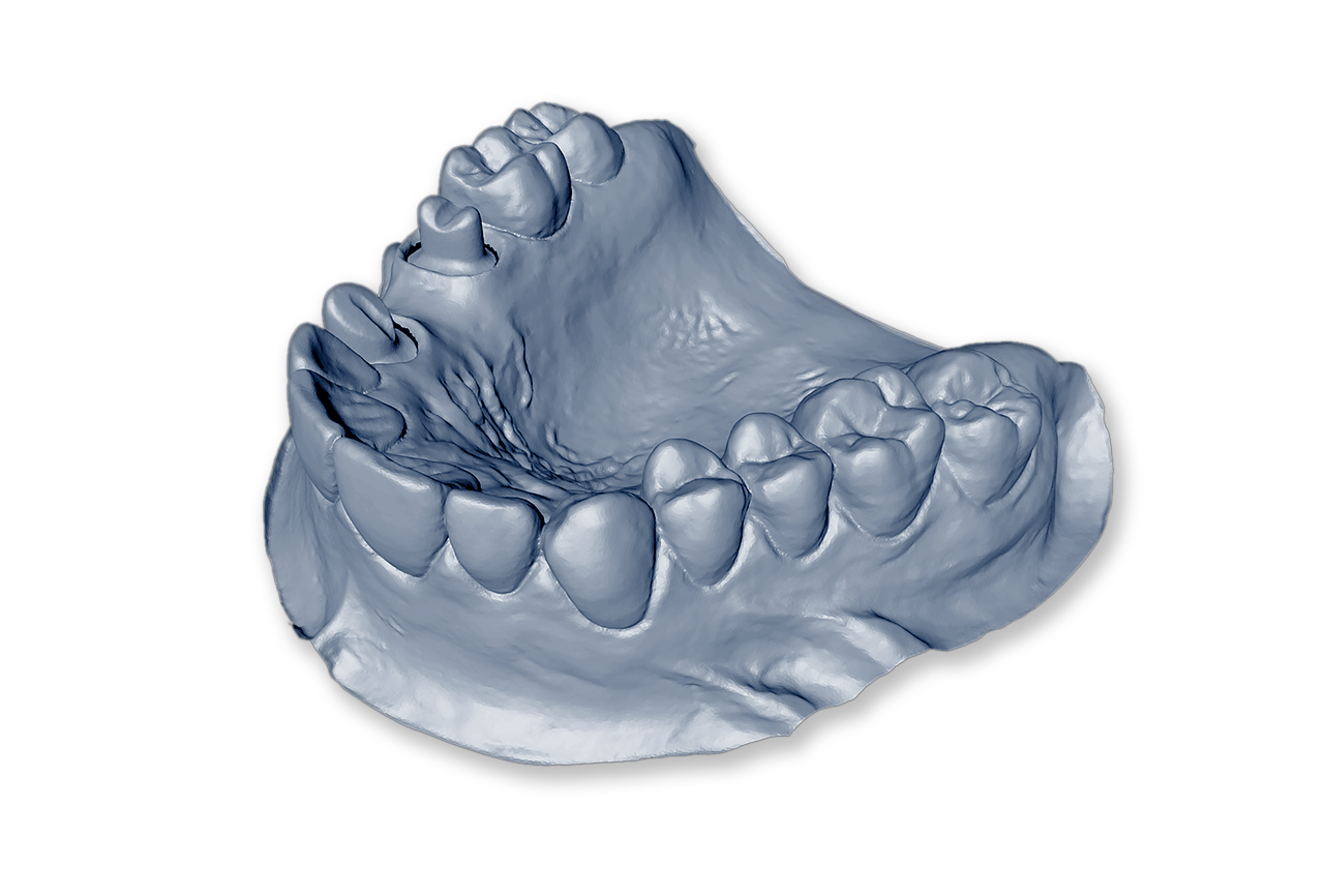 Isolated Dental Model Mandible